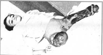 101-_torture_10a_enfant_ampute_2_jambes_suite_a_bombe-34d0f